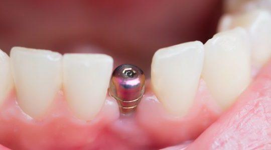 La vitesse des implants à chargement immédiat